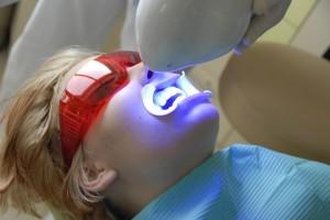 wybielanie zębów Gdańsk